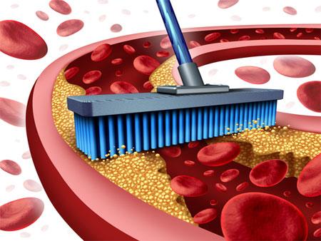 Trápí vás zvýšená hladina cholesterolu?